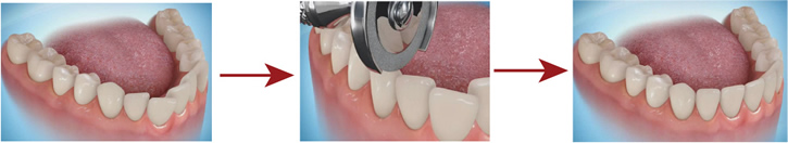 Orthodontic Appliances - Interproximal Reduction (IPR)
